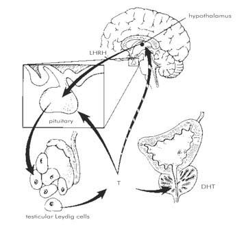Hogyan működik a prosztatitis a tesztoszteronon